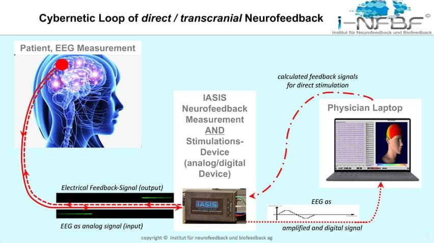 Cybernetic Loop Direct Transcranial Neurofeedback
